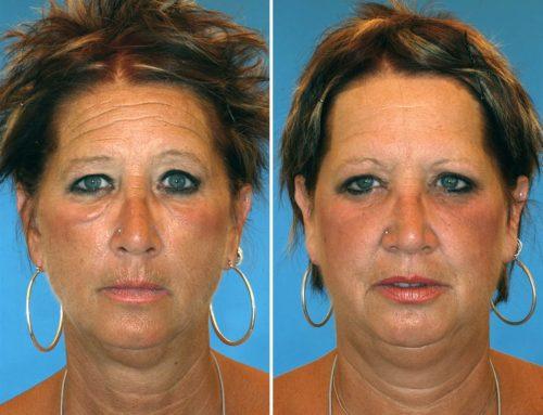 Tabaquismo y envejecimiento. Efecto devastador en gemelas