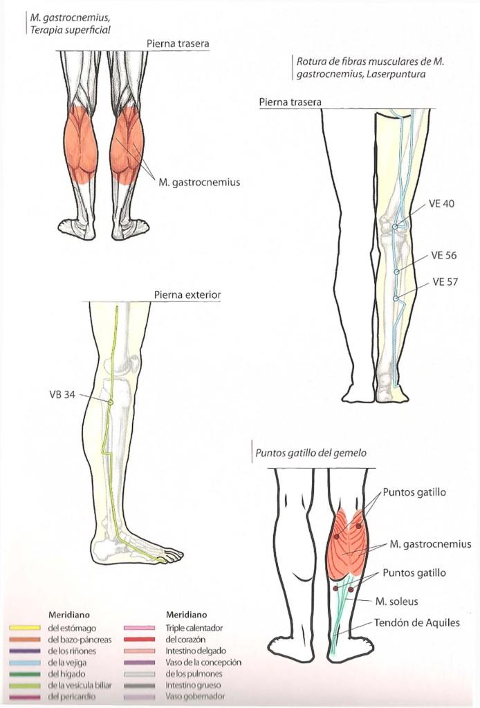 Roturas fibrilares musculares
