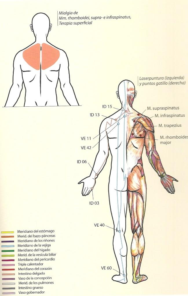 mialgia posterior0001
